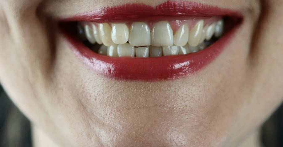 interesting facts about teeth